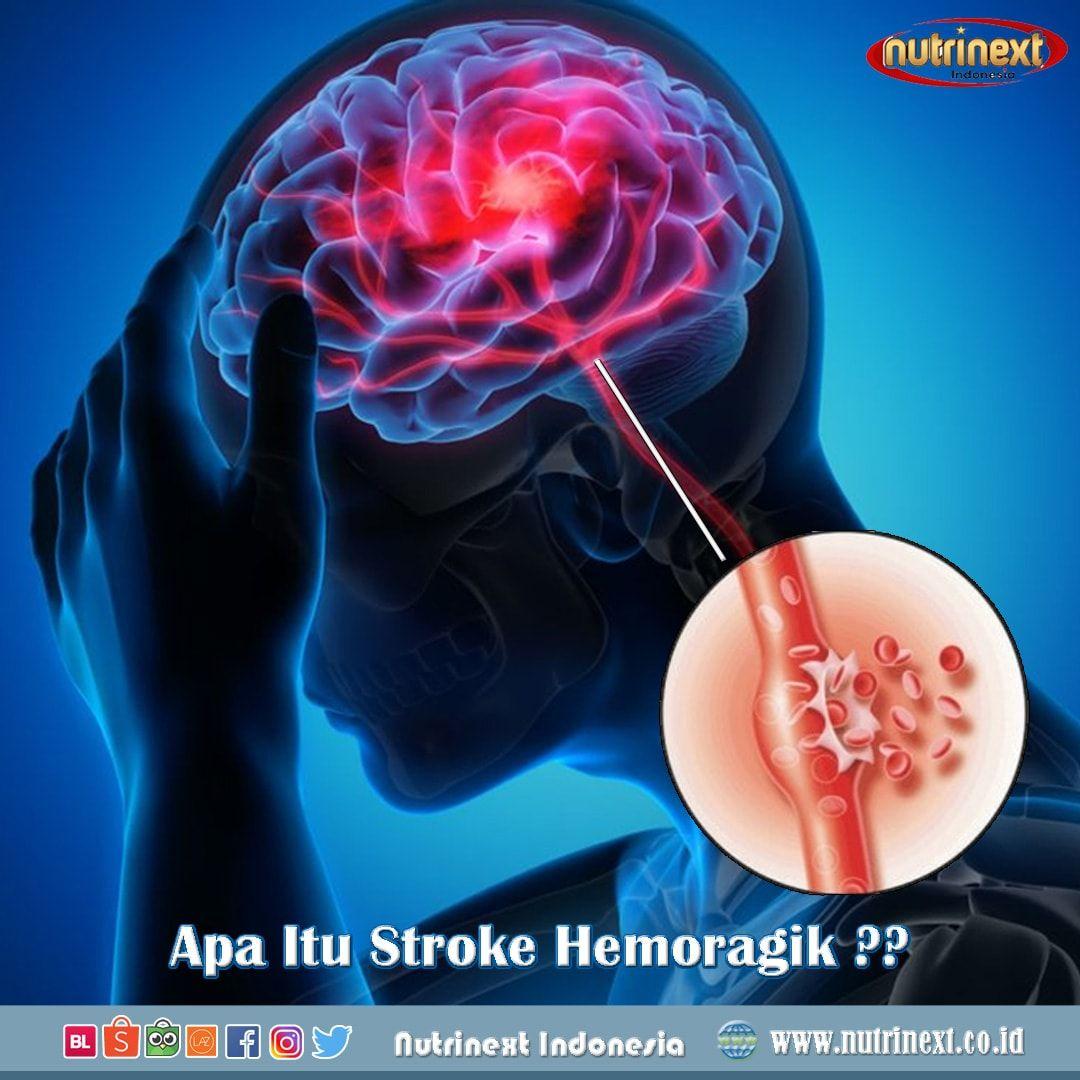 41++ Penyebab penyakit saraf otak ideas in 2021