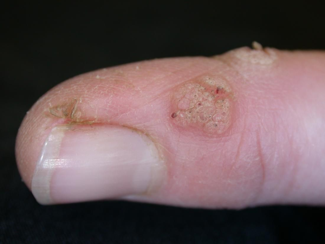 hpv and skin issues)