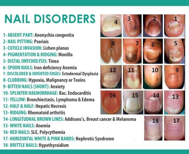 Fingernail Color And Clues To Your HealthPositiveMed