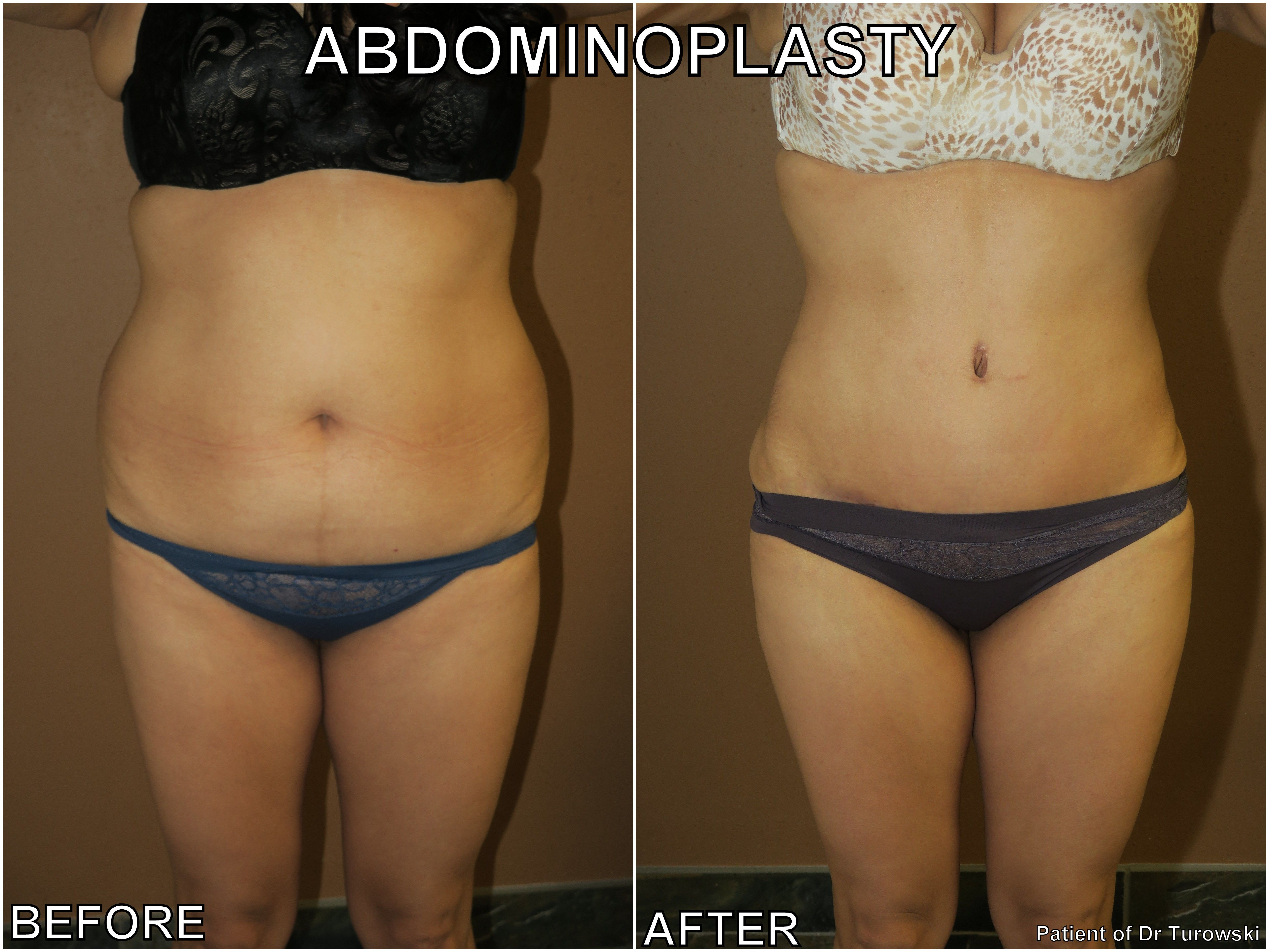 Pin by Dr  Gregory Turowski on Tummy Tuck Chicago   Tummy