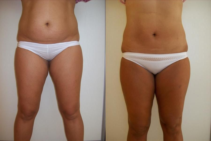 Waist Wet Liposuction Before and After photos ...