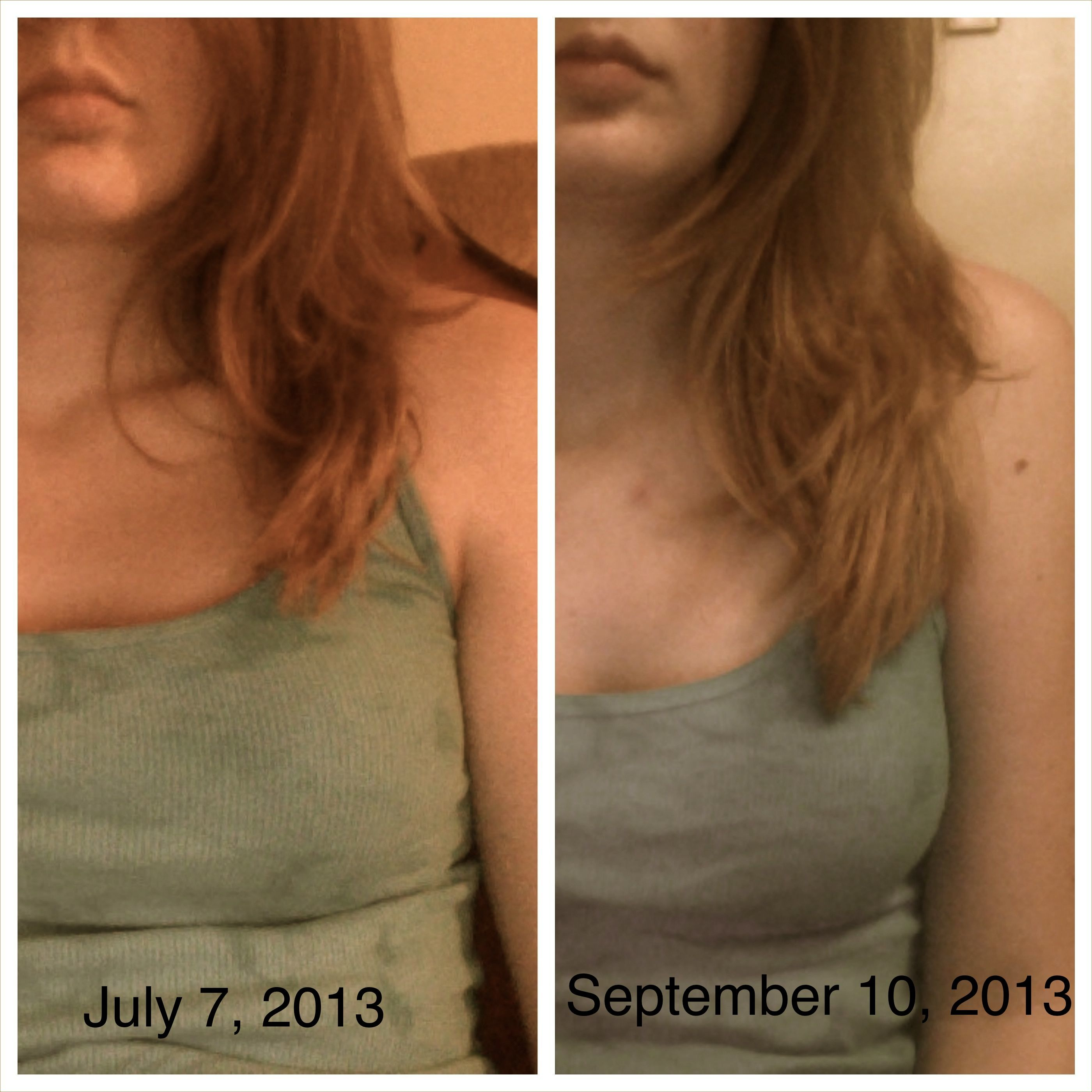 My hair growth results after finishing one bottle of Biotin 10,000 mcg.