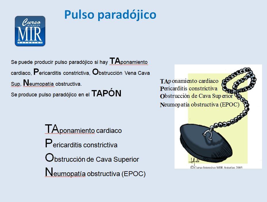 Pulso paradójico - #Cardiologia