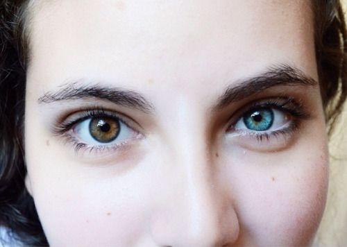 heterocromia