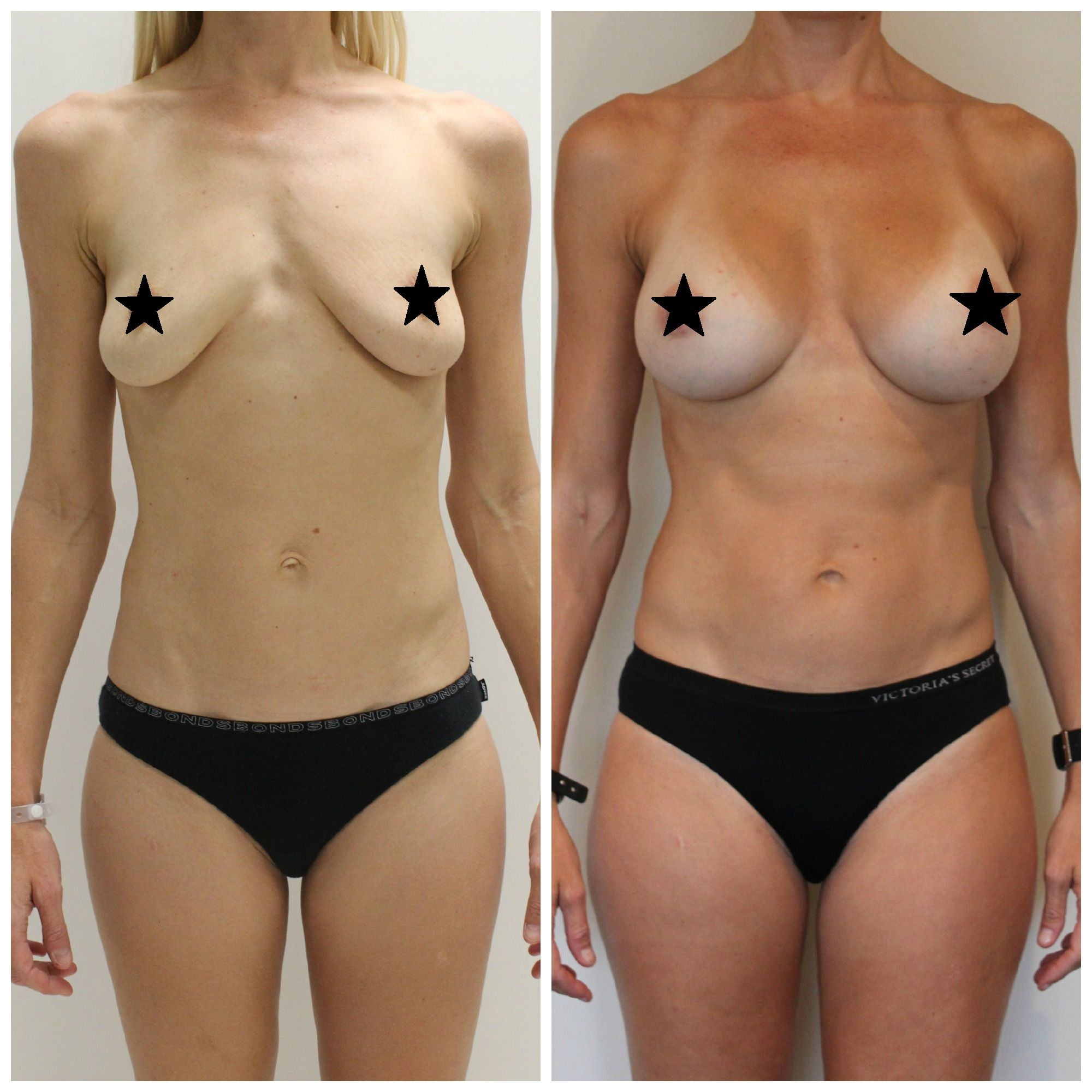 Breast augmentation a cup to c cup