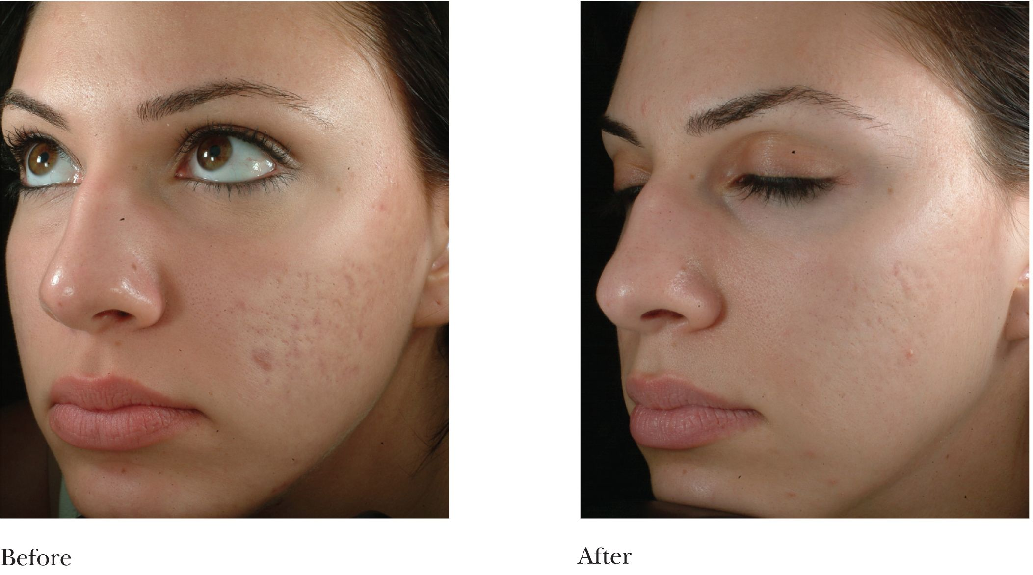 before and after pictures of | Microdermabrasion Cosmetic / Plastic