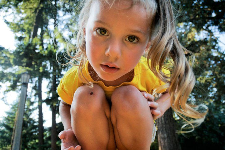 Pin for Later: 9 Childhood Ailments That Gross Out Parents Cuts and Wounds