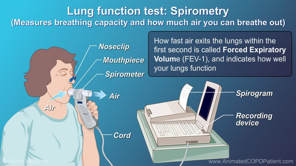 how to test for copd