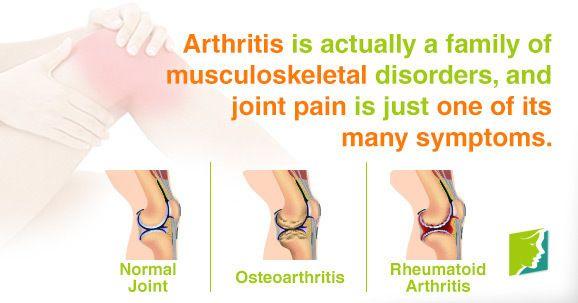 did you know?  Visit us  jointpainrepair.com  Via  google images  #jointpain #jointpains #jointpainrelief #kneepain #kneepains #kneepainnogain #arthritis #hipjoint  #jointpaingone #jointpainfree