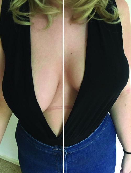 0d1ae3f869e Model is cup size FF and wears F-G Perky Pear® breast lift   shape tape