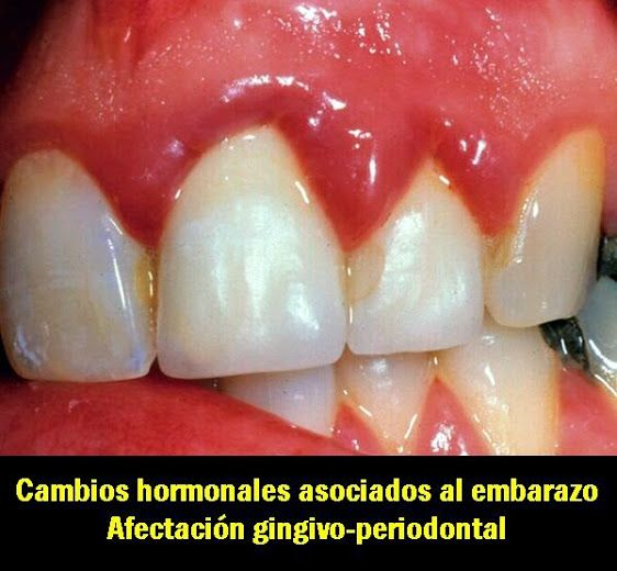 Cambios hormonales asociados al embarazo. Afectación gingivo-periodontal | OVI Dental