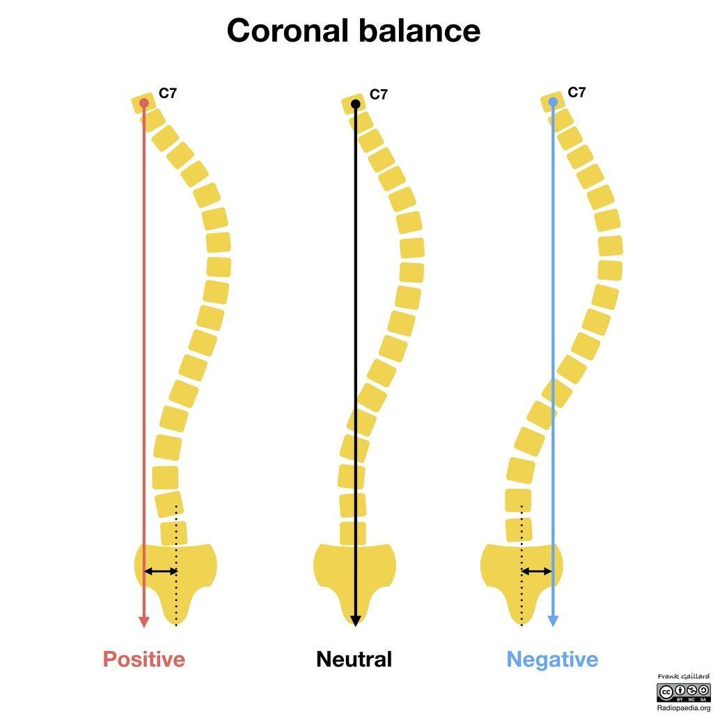 Coronal and sagittal balance radiology case