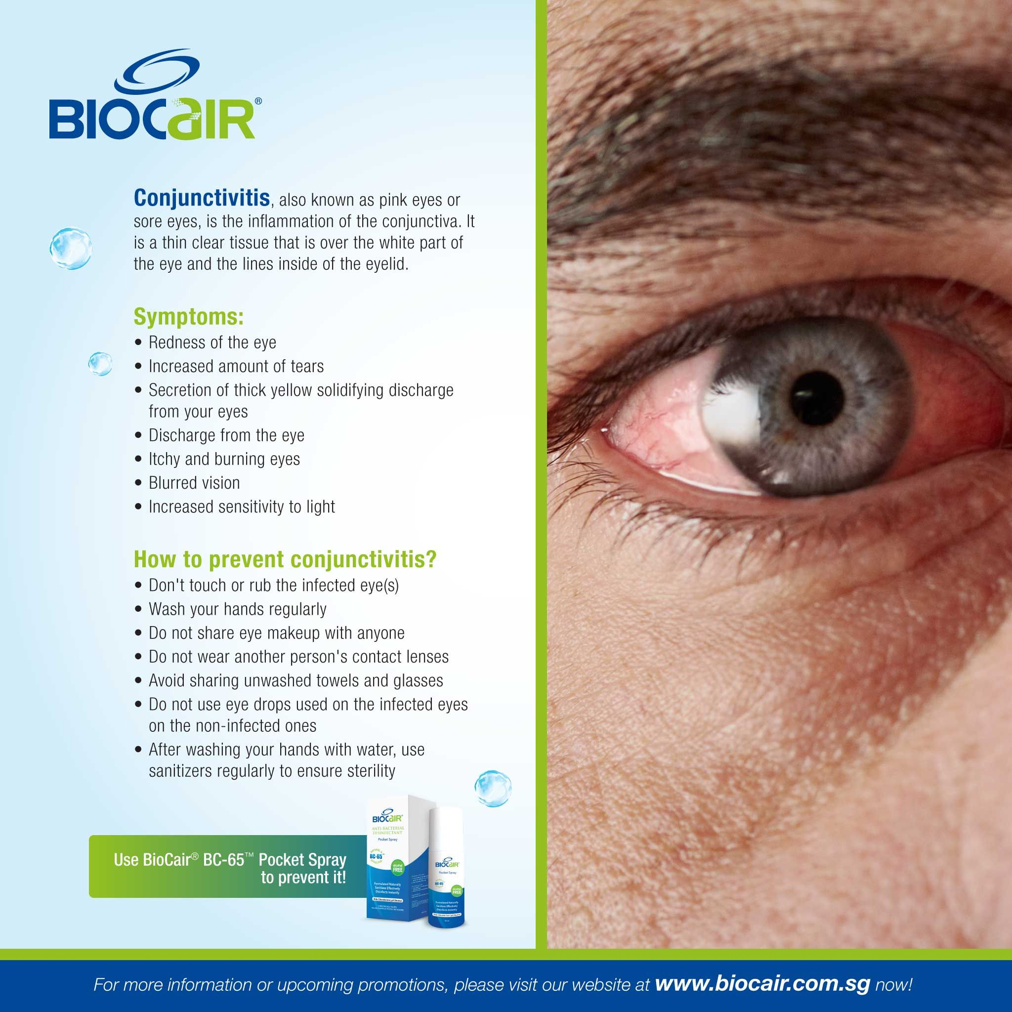 How To Prevent Conjunctivitis Parts Of The Eye Pink Eyes Sore