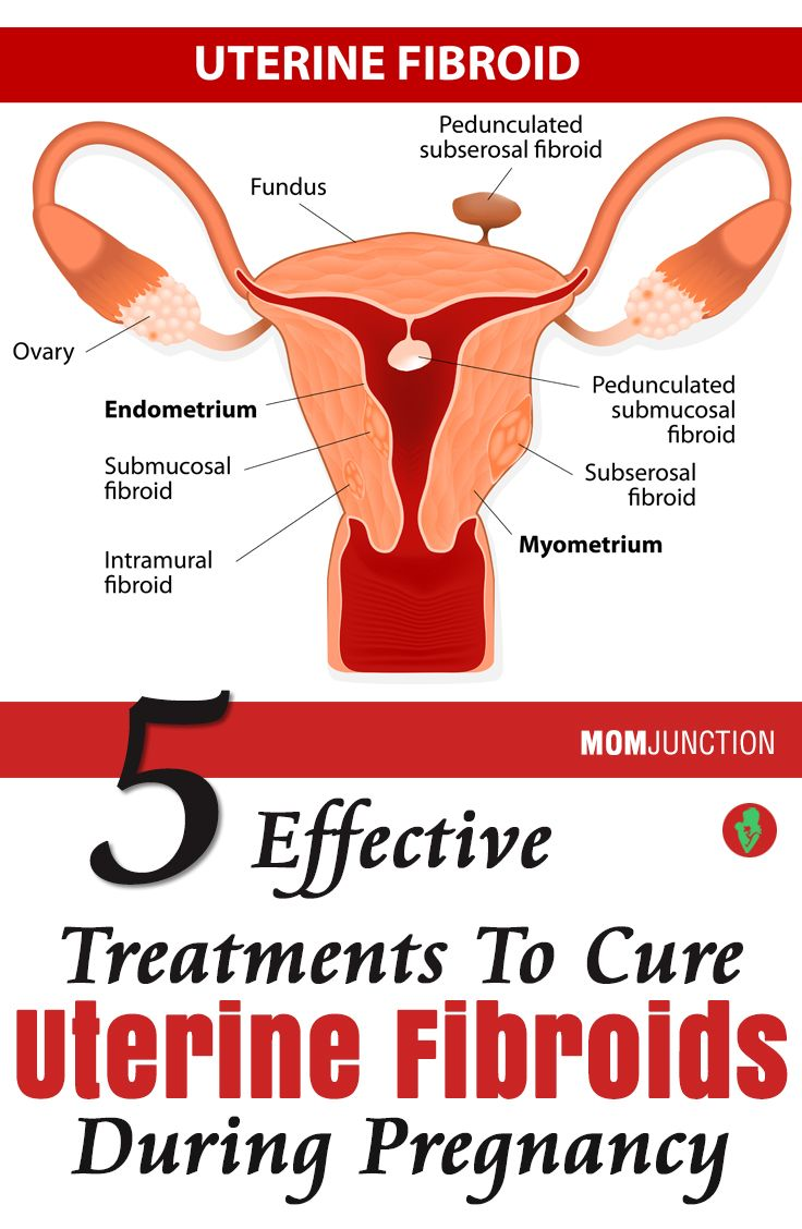 Natural Fibroid Treatment During Pregnancy