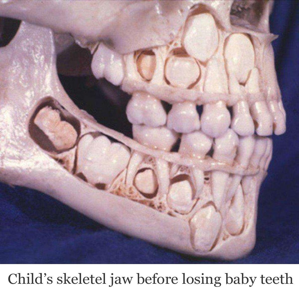 Child's jaw before losing baby teeth Zähne, Milchzähne
