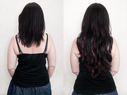 Vorher nachher frauen dreadlocks Haartransplantation Vorher
