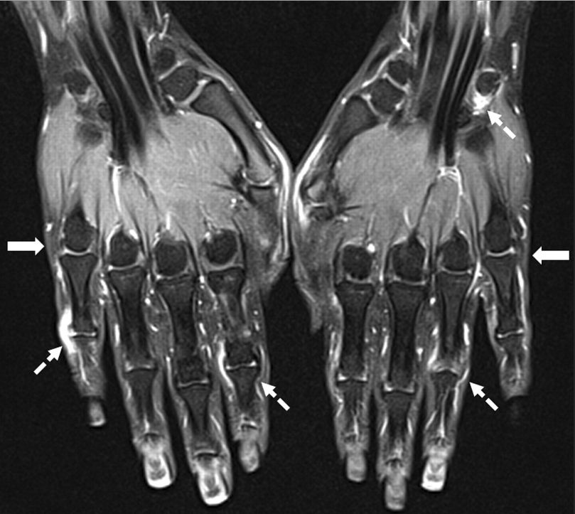 MRI, newly developed criteria could aid early ID of rheumatoid ...