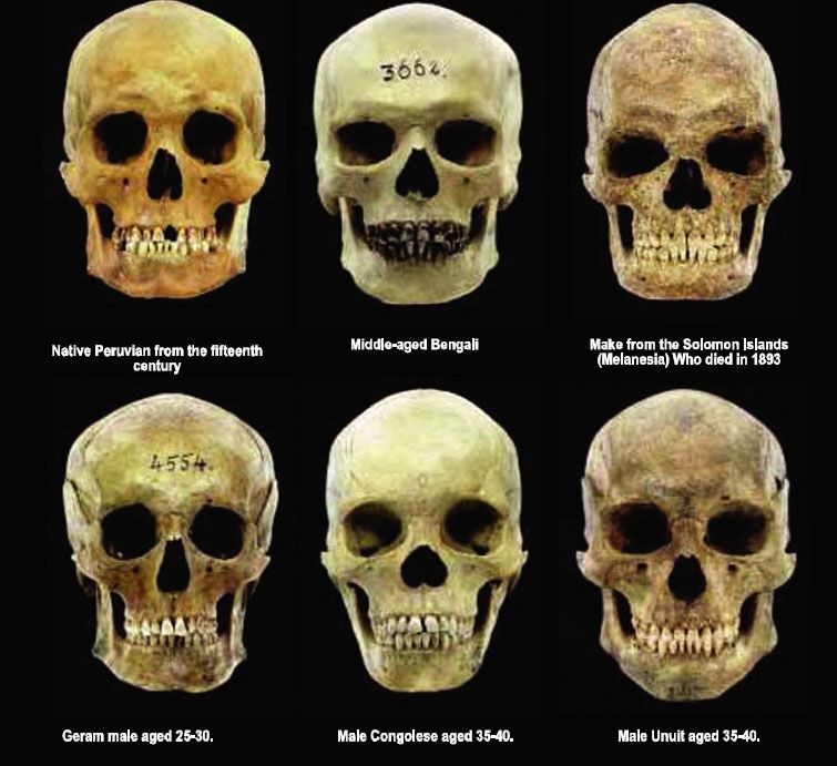 skelton jewish personals Jewish distinctiveness took place in the last third of the nineteenth century and found its  dating from 1882,  physical characteristics of the jews ,.