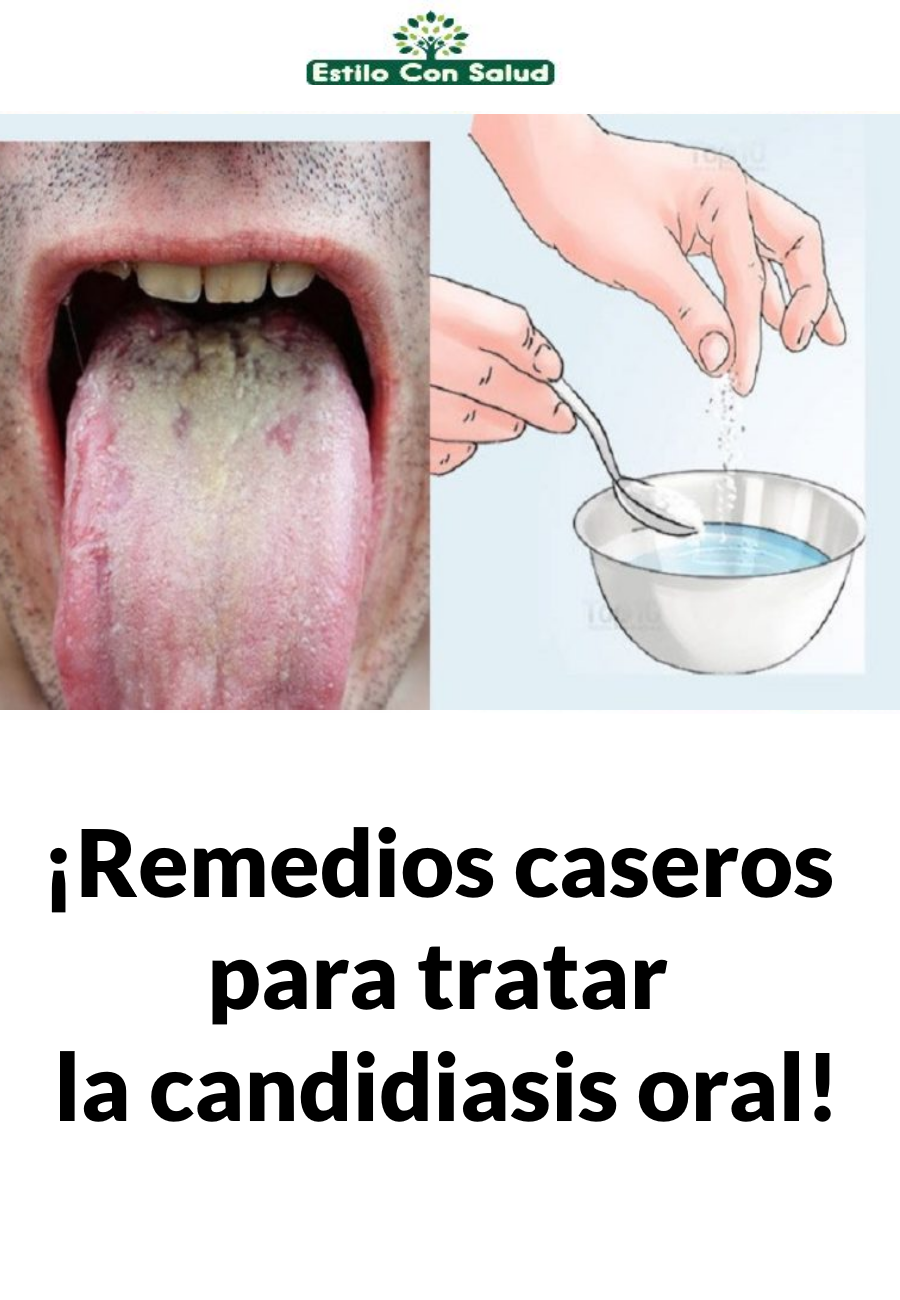 aceite de coco para tratar la infección por levaduras