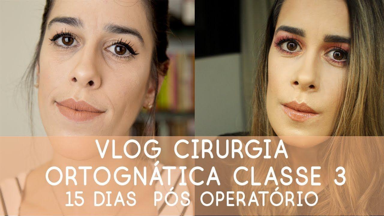 Vlog Cirurgia Ortognatica Classe 3 Bruna M Silva Youtube