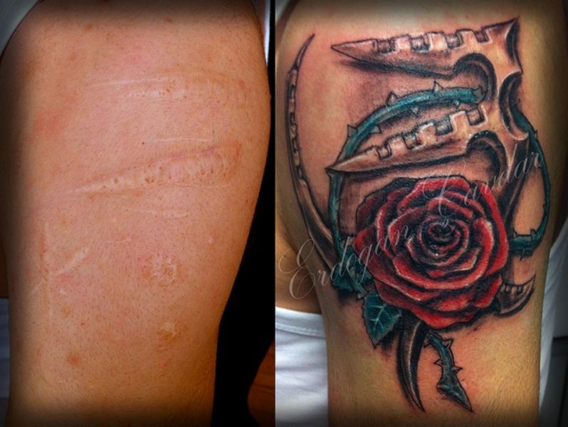 Really good cover up tattoos over scars pinterest for Cool cover up tattoos