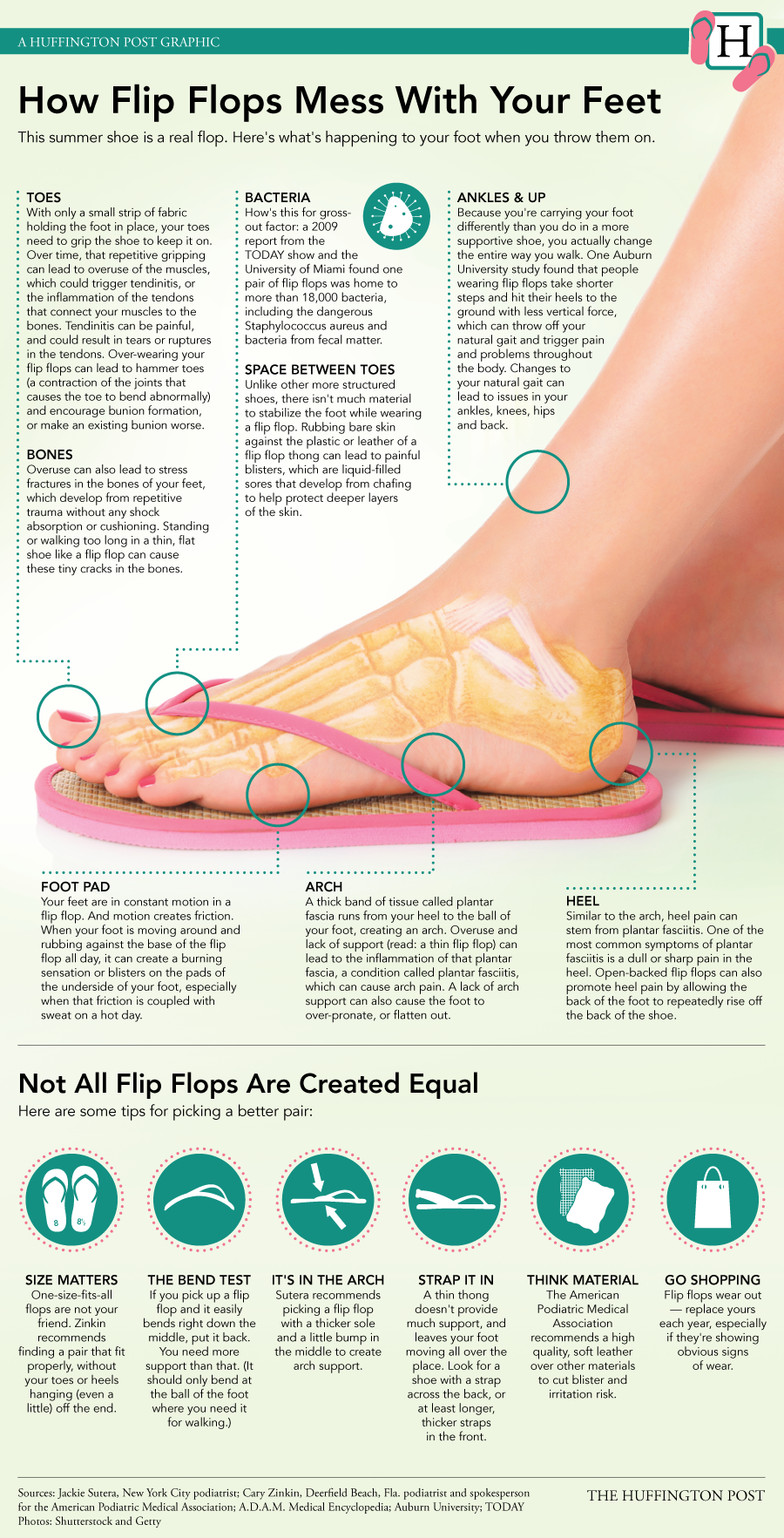 80cb20c08 Are your flip flops providing enough support for your feet this summer   Here are a few tips from The Huffington Post to help you pick a pair that  properly ...