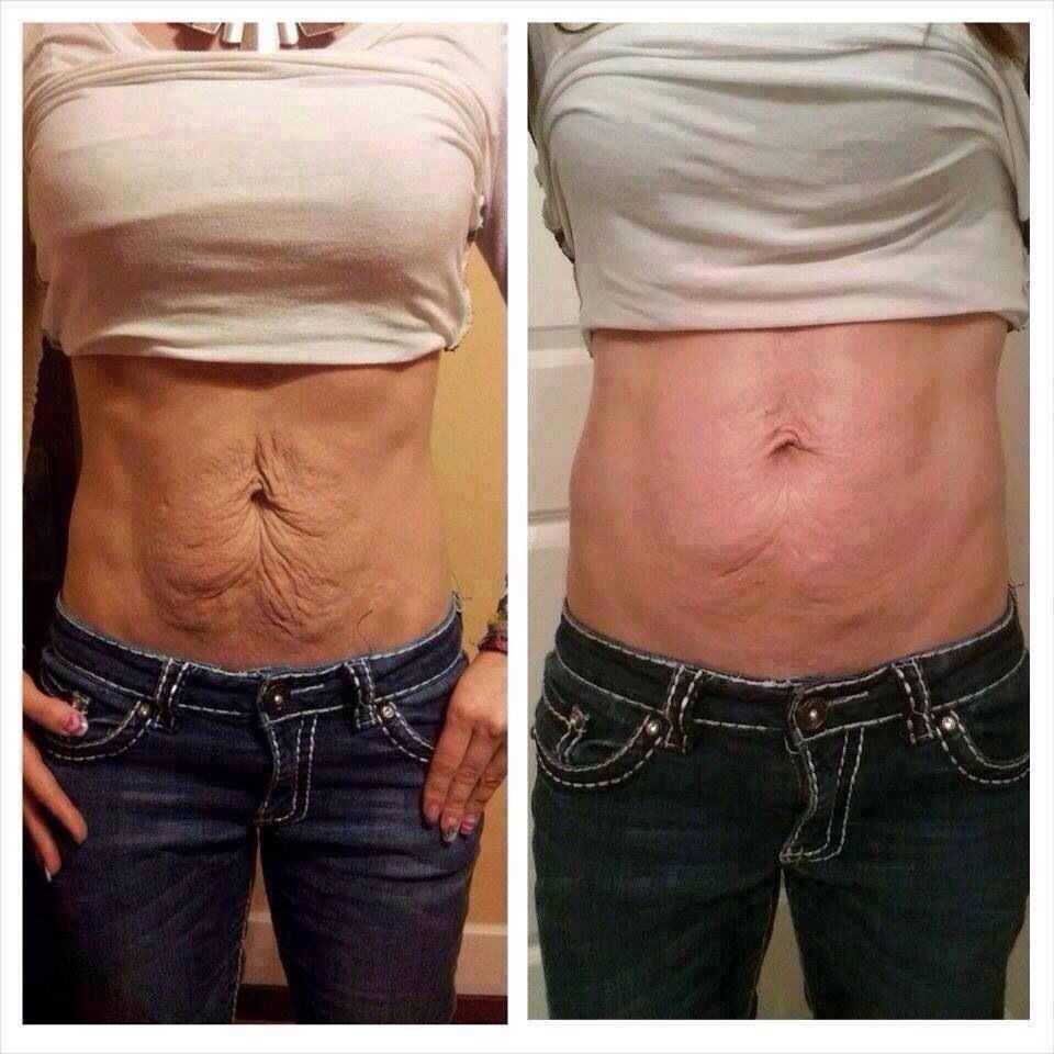 Loose skin try a wrap they really do work