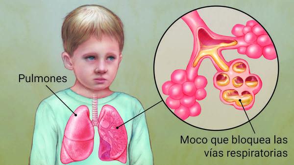 FIBROSIS QUÍSTICA ¿Es una enfermedad pulmonar simple? Entérese aquí ...