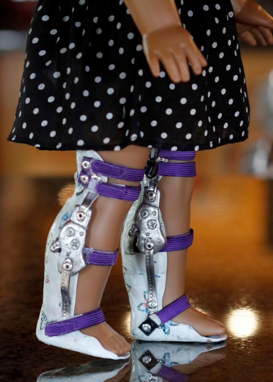 teenage girl leg brace kafo