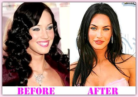 Meganfoxplasticsurgery meganfox famous plastic surgery for Can you get a tattoo before surgery