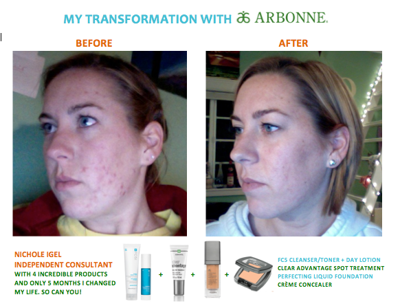 This is what changed the way I look and feel. Check out Arbonne's naturally based Clear Advantage and Fc5 products. If you know someone who is struggling, this WILL make a difference! Www.wealthhealthbeauty.myarbonne.co.uk consultant ID: 441249698