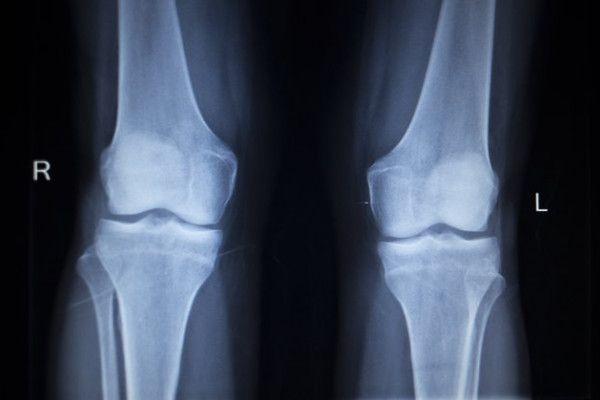 ce este artroza