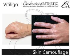 Vitiligo is a medical condition that causes white patches on the skin. Candice Watson…