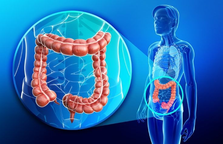 cancer de colon el
