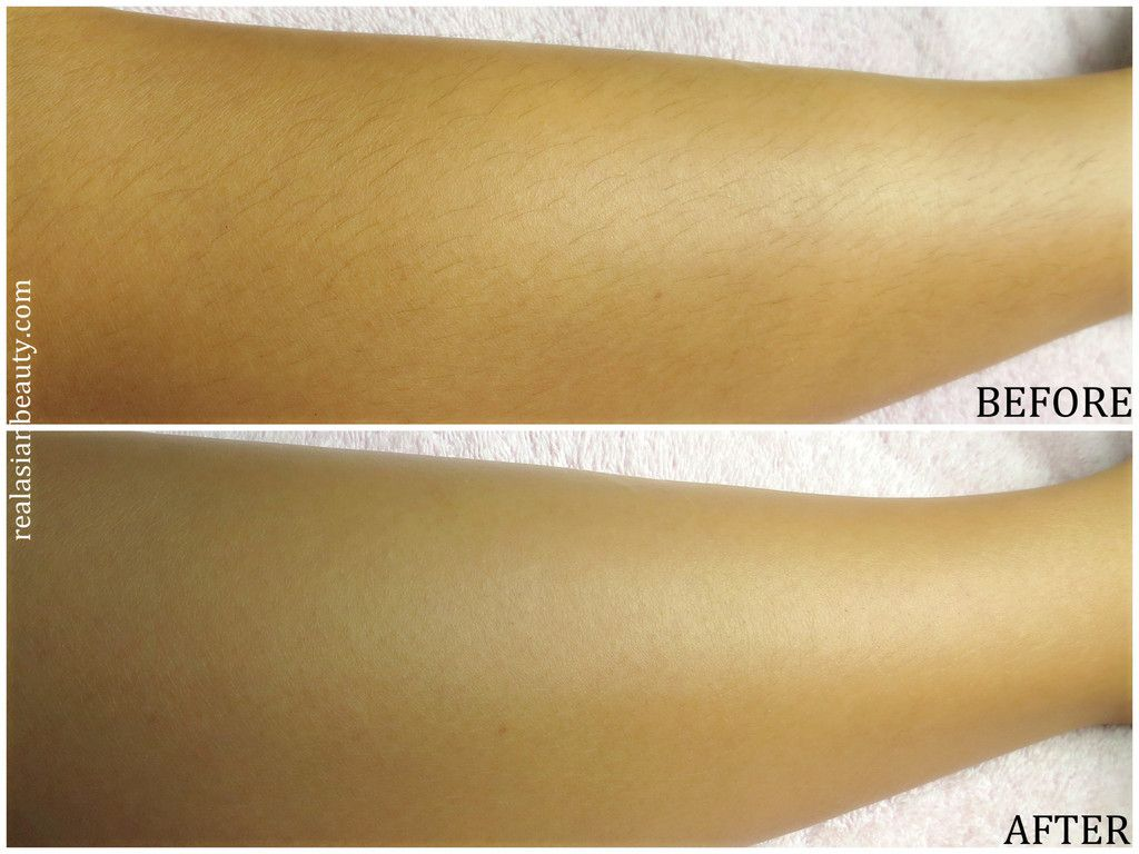 The Before And After Of Using Veet Hair Removal Cream Hair