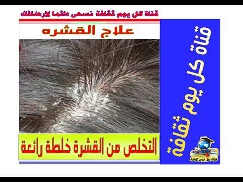 علاج القشره و التخلص من القشرة خلطة رائعة قشرة الرأس علاج القشره و علاج قشرة الشعر
