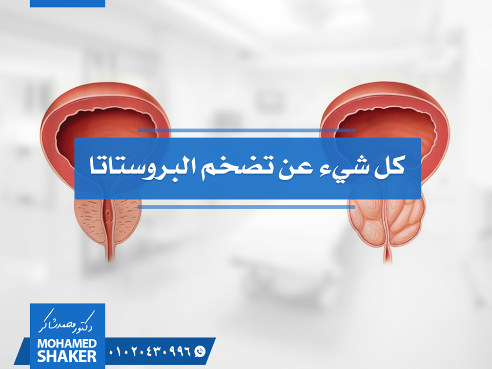 دكتور محمد شاكر استشارى الأشعة التداخلية و رائد علاج تضخم البروستاتا بالقسطرة العلاجية بدون جراحة فى مصر و الوطن العربى Highway Signs Signs