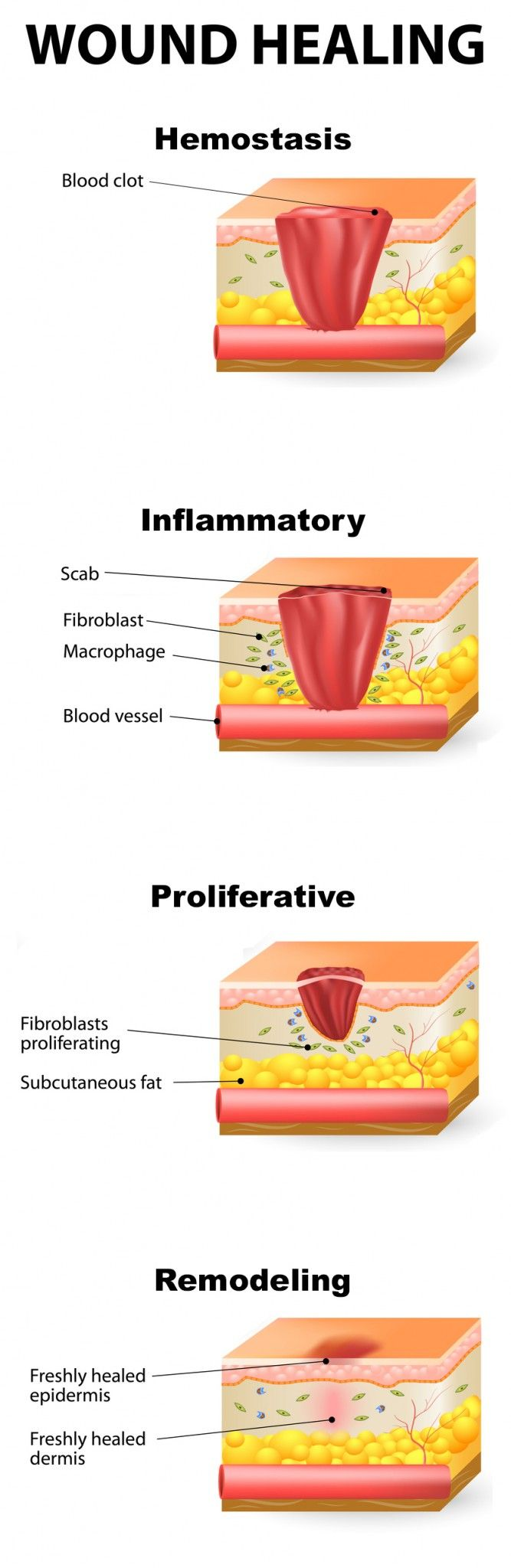 Stages of wound healing | The Paleo Mom | Health ...