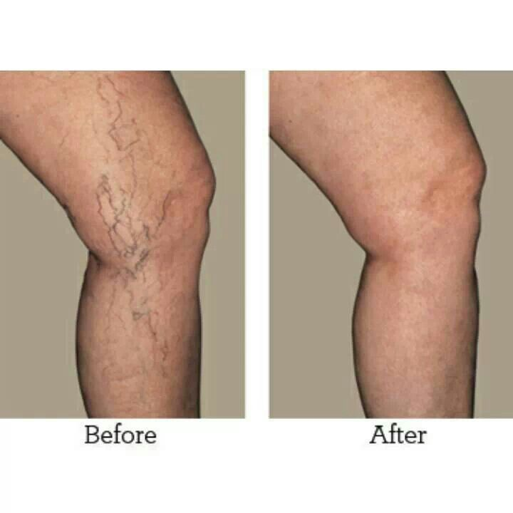cypress for varicose veins