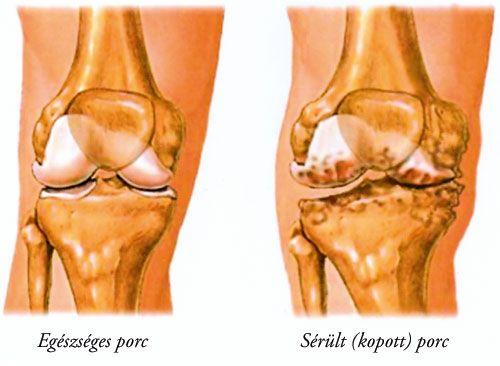 nagy ízületek osteoarthritis kezelése