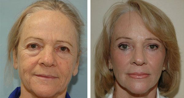 Photo of Fitness And Beauty: Meet The No Surgery Facelift Using Face …