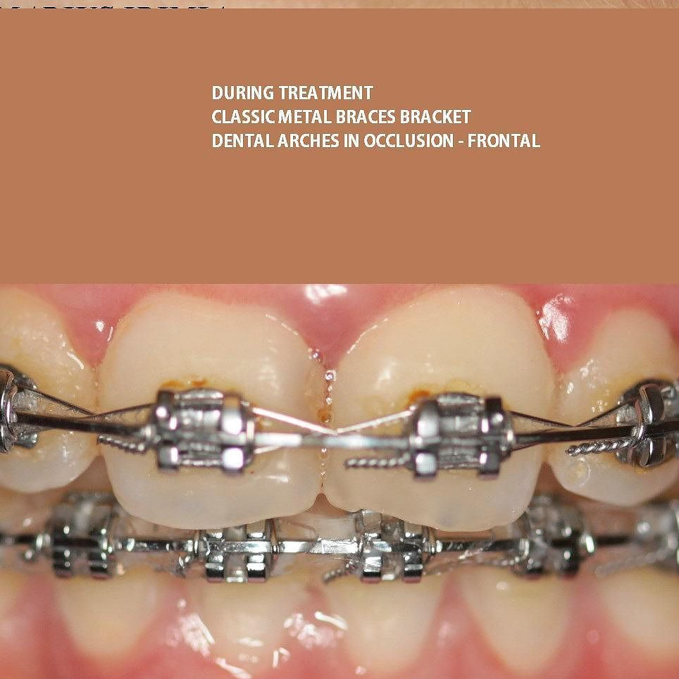 dental braces in romania with affordable prices also in india