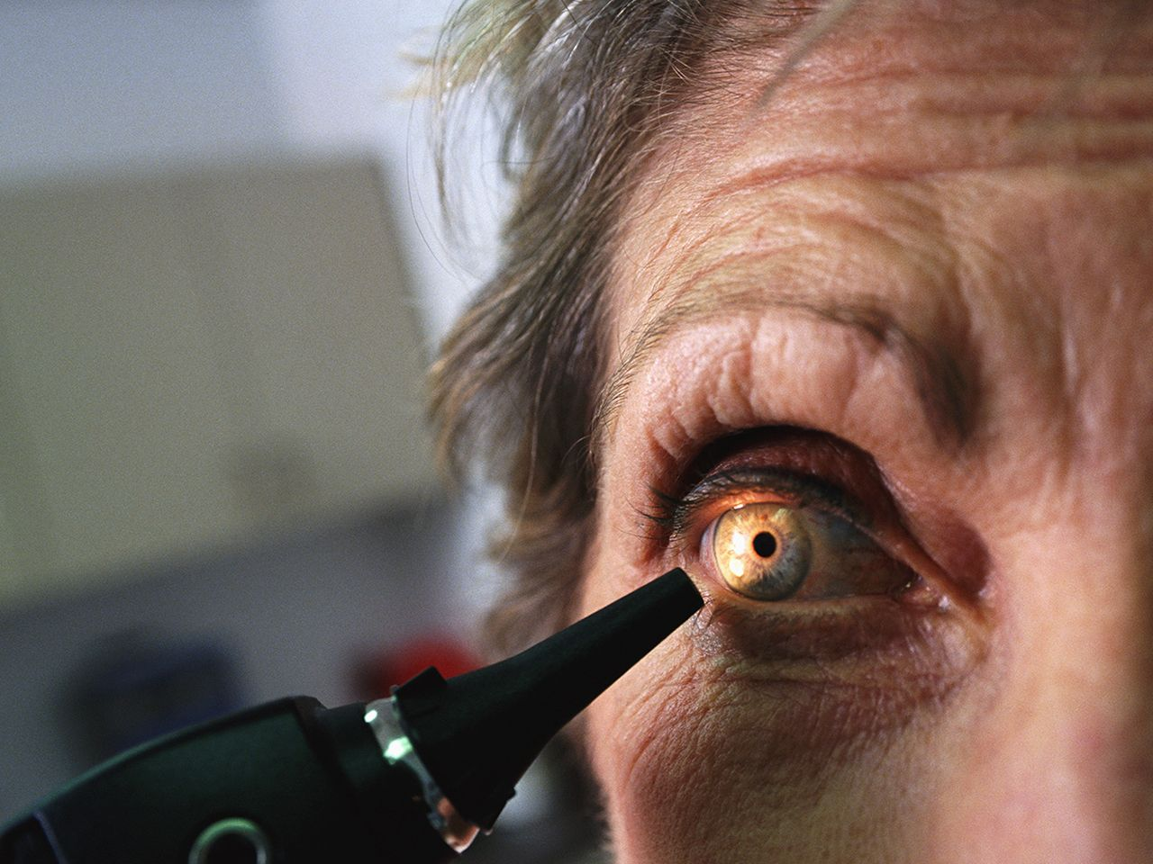 Why more boomers are getting cataract surgery at a younger age