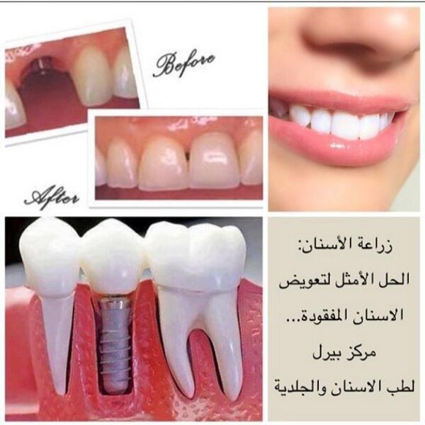 زراعة الاسنان بالنظام الامريكي و السويسري لدى استشاريون سعوديون للحجز و الاستفسار ٠١١٢٦٣٢٤٢٤ زراعة Google
