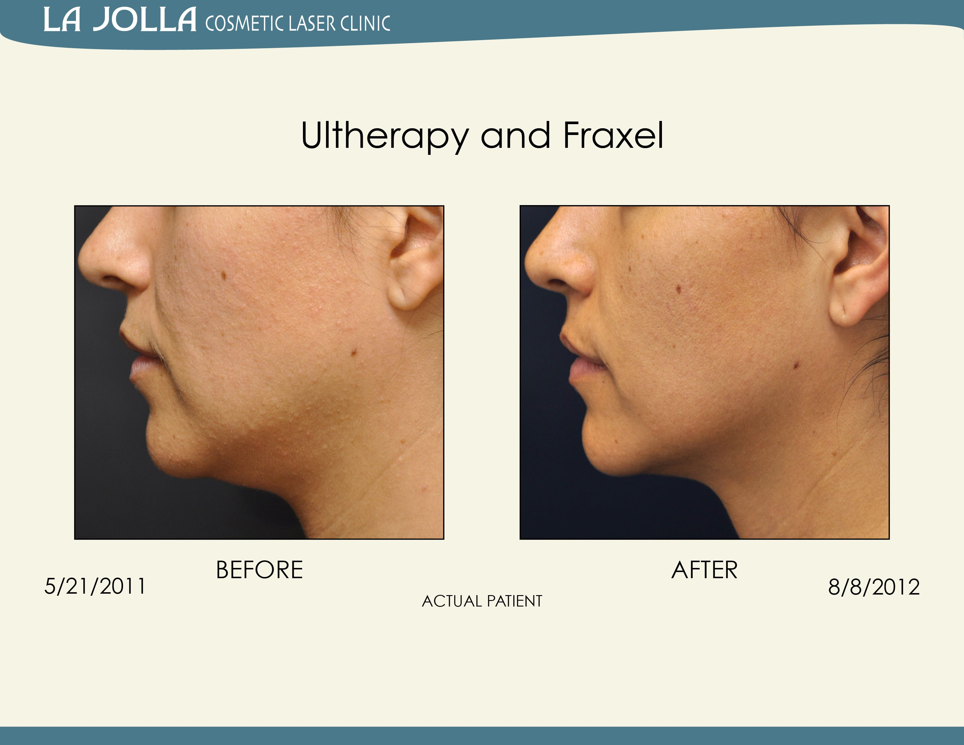 Patient treated with Ultherapy and Fraxel at La Jolla