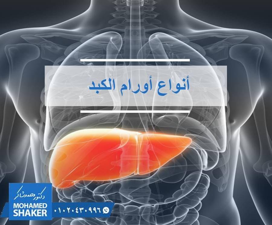 هل جميع الاورام التي تصيب الكبد اورام خبيثة الاجابة هي لا و ي عتبر ورم الكبد نمو ا غير طبيعي لخلايا الكبد ولأورام الكبد أنواع عديدة تختلف باختلا Shaker