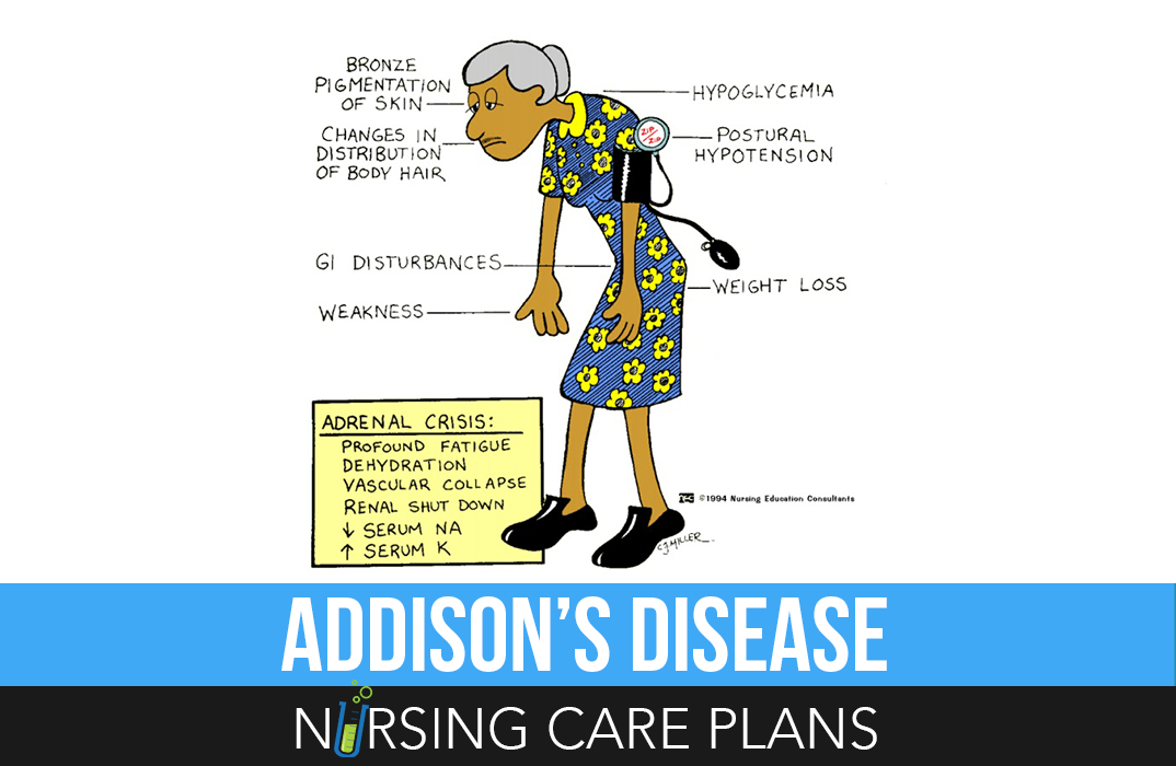 AddisonS Disease Nursing Care Plans  Nursing Care Plan