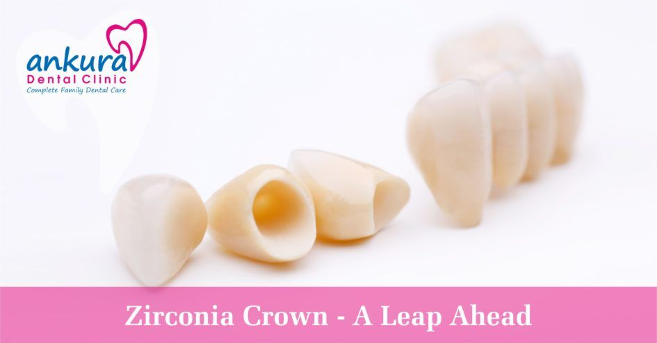 What is Zirconia? Zirconium is a chemical element with atomic number - best of periodic table zr