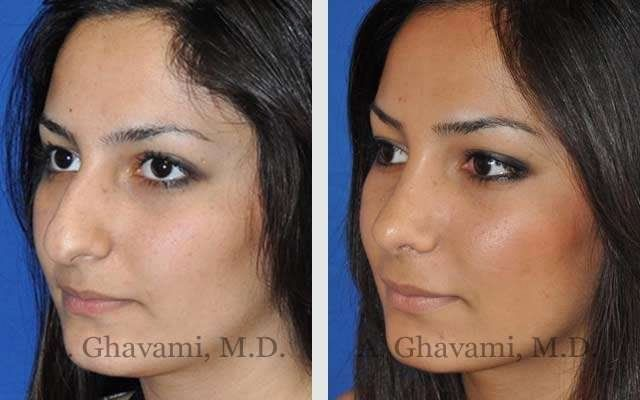 Before After Nose Surgery Pictures In Beverly Hills Los Angeles