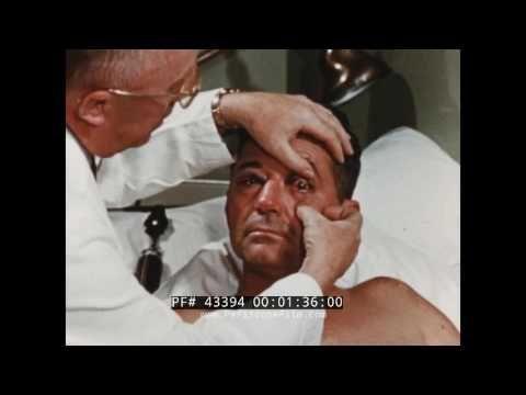 1954 POST HIGH SPEED ROCKET SLED TEST RUN MEDICAL EXAM OF JOHN PAUL STAPP (SILENT FILM) 43394